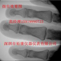 四肢X光机便携式X光机医用X光机