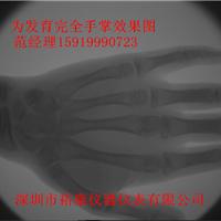 供应骨龄骨密度检测仪医用X光机便携式X光机