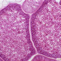 GH3, 大鼠垂体生长激素腺瘤
